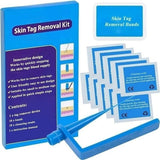 Micro Skin Tag Remover Device Kit for Small To Medium Skin Tags