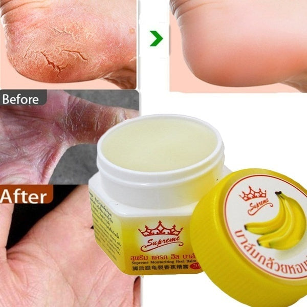 Effective Odor Treatment Nourish Anti Chapped Anti-Drying Crack Cream Skin Care Product Dead Skin Remover Banana Oil Repair