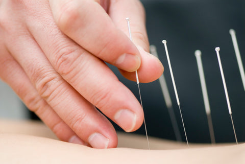 Established Patients Acupuncture Treatment