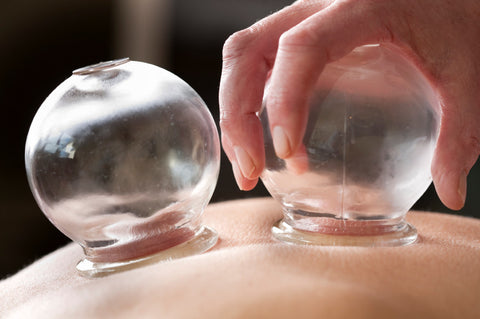 30 minutes Cupping therapy