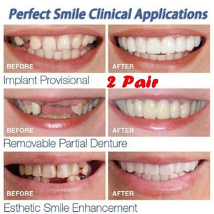 2 Pair Teeth Veneers Upper Und Lower Braces Reusable Snaps Perfect Smiley Whitening Dentures