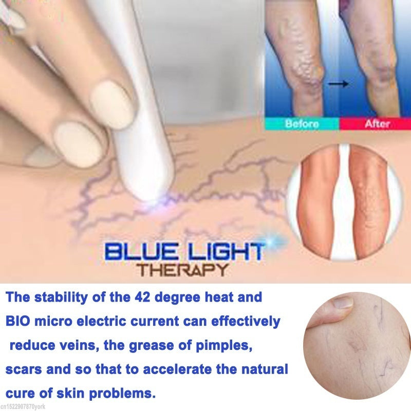 Medical Red Blue Light Therapy Varicose Veins Treatment Laser Pen Scar Wrinkle Removal Pen