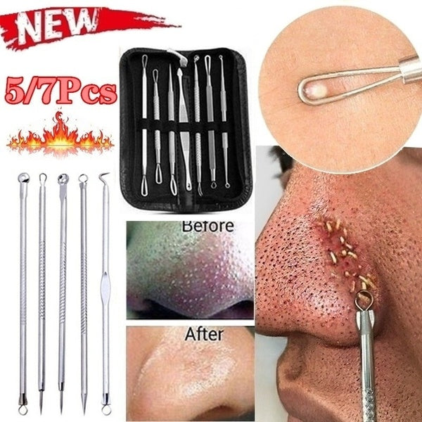 5/7pcs Blackhead Whitehead Pimple Spot Comedone Acne Extractor Remover Popper Tool Kit
