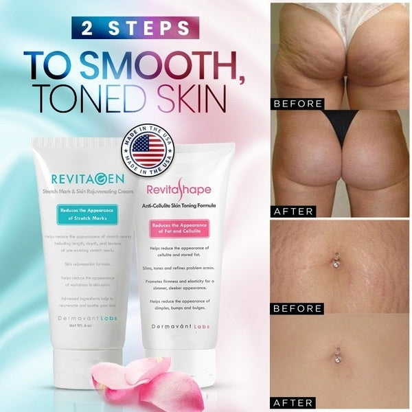 Cellulite Reducing Cream or Stretch Mark Fader Cream  (1 Items) 30G