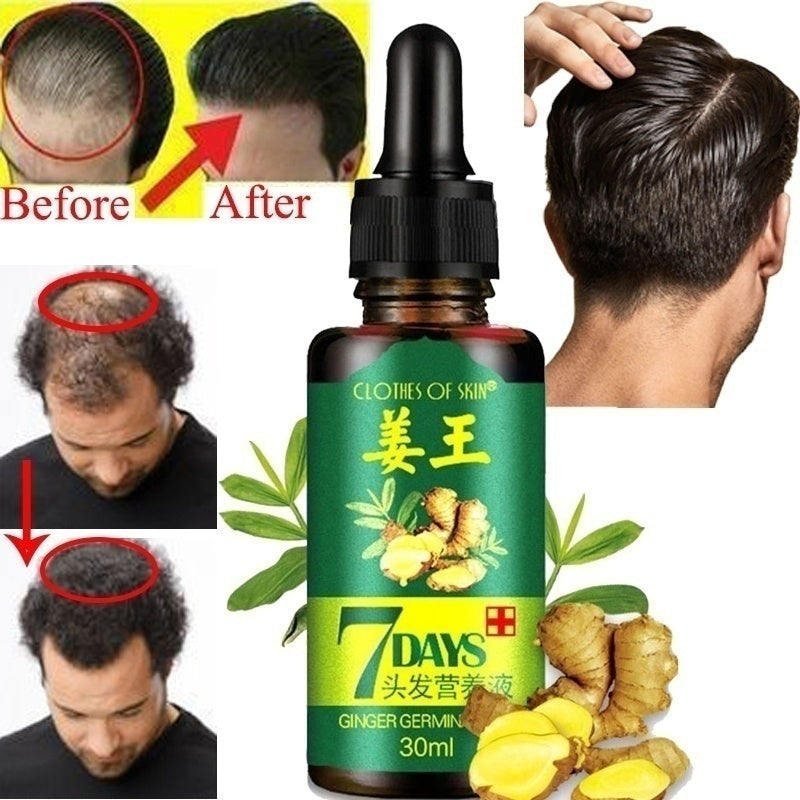 30/20/10 ML Hair Growth Oil Essence Thickener for Hair Growth Prevent Hair Loss Product Natural Chinese Herbal Extract Serum to Help Your Hair