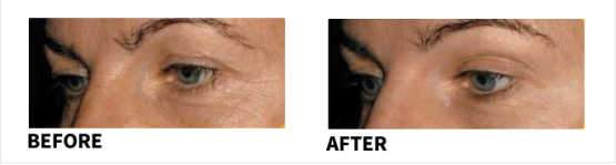 NAOMI Collagen Before & After
