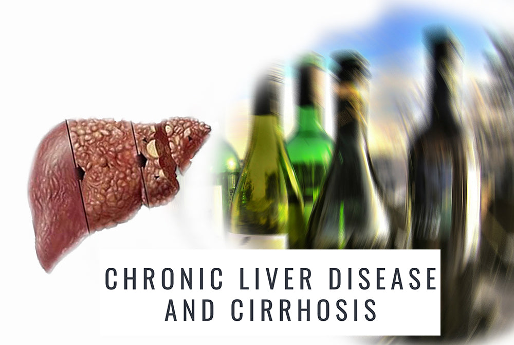 Chronic Liver Disease and Cirrhosis