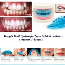 Load image into Gallery viewer, 53 Romantic House Straight Teeth Bite System-Devoraels.Ltd