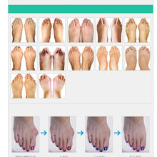 Load image into Gallery viewer, 2PCS Foot Toes Separator Multifunctional 5 Holes Toe Corrector Orthopedic Braces Toe Pad Toe Correction Tool