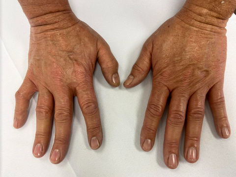 Post paraffin wax treatment for mens hands