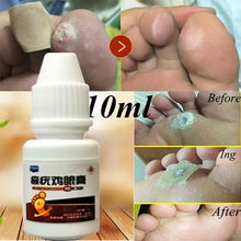 Load image into Gallery viewer, 1 Bottle 10ml/20ml Foot Care Relief Pain Removal Warts Plaster Chicken Eye Corns Removal Feet Care Anti-germ Plantar Killer Chinese Medicine Treatment Calluses Warts Thorn Remove