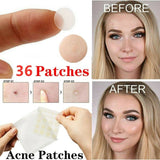 36PCS Acne Pimple Patch Skin Tag Removers Face Spot Scar Treatment Stickers