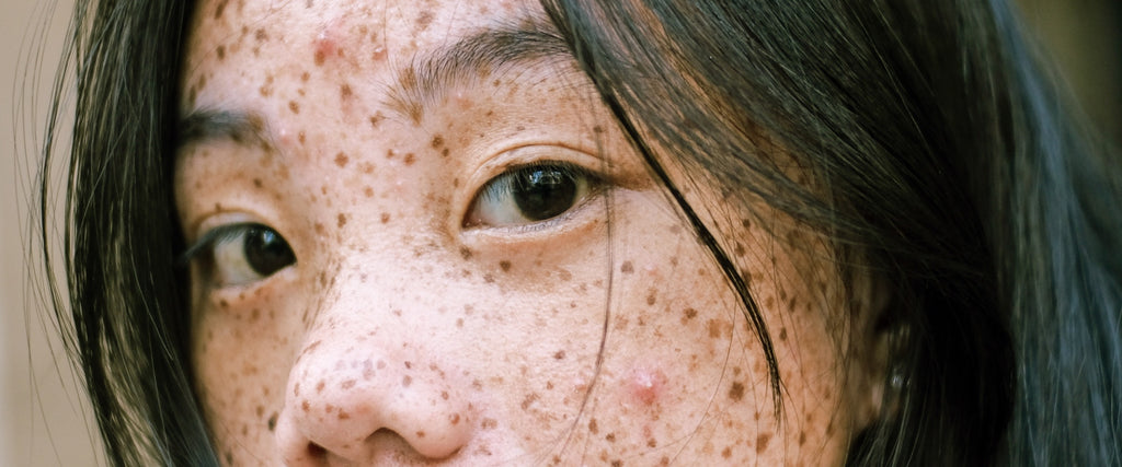 Intense Exfoliation Can Kill Your Acne