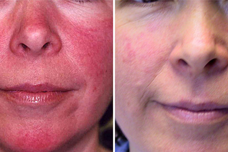 Rosacea: What To Do (and More Importantly What Not To Do)