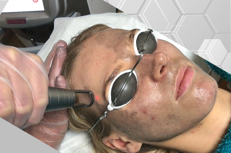 Spectra Carbon Peel aka The Hollywood Peel