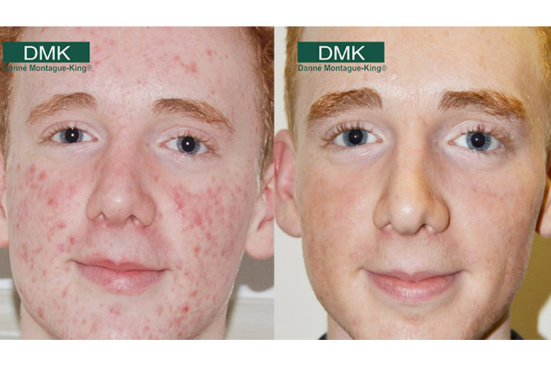 Men's Skincare Week: Male Acne