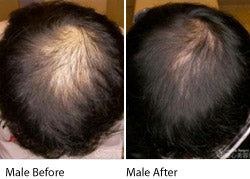 Hair Loss / Thinning hair and eDS Dermastamp