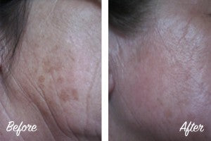 Retriderm Retinol Before and After Sun Spots Age Spots Pigmentation