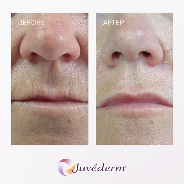 juvederm filler before and after