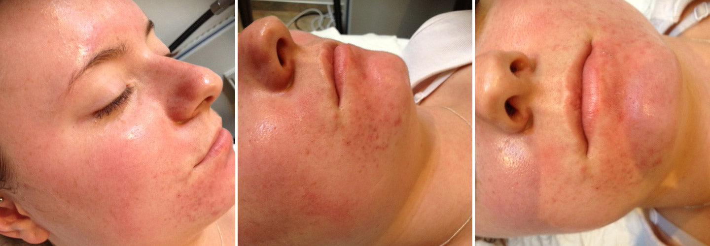 Laura's skin during the treatment process