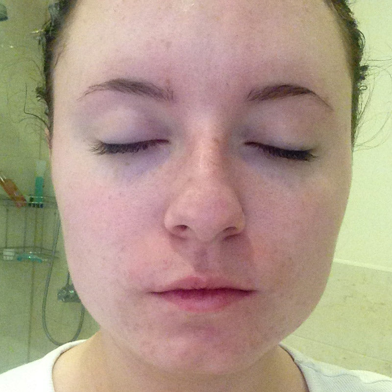 Laura's skin after treatment