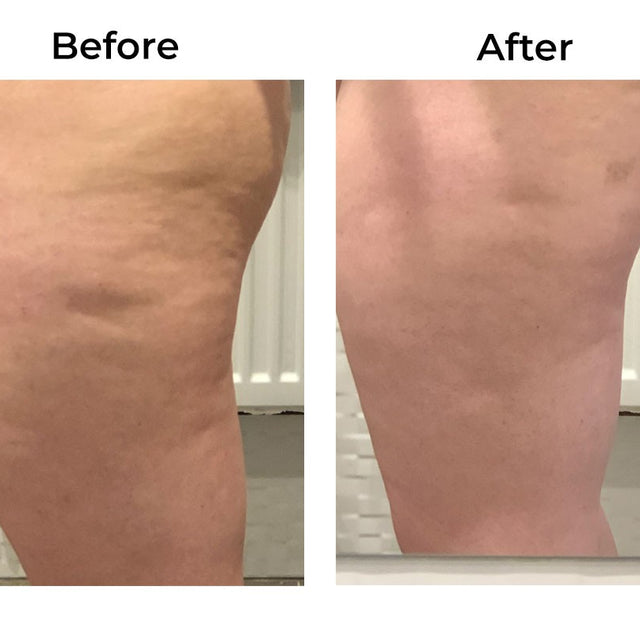 Skinade Targeted Solutions Cellulite