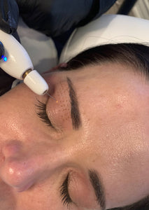 Plasma Fibroblast Skin Tightening