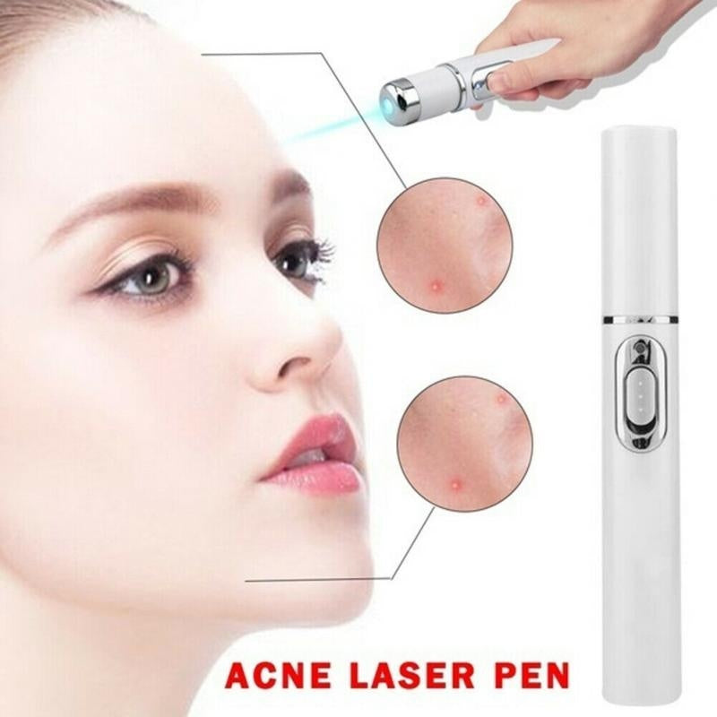 Acne Removing Instrument Skin Face Blu-ray Pen Freckle Mole Dark Spot Removing