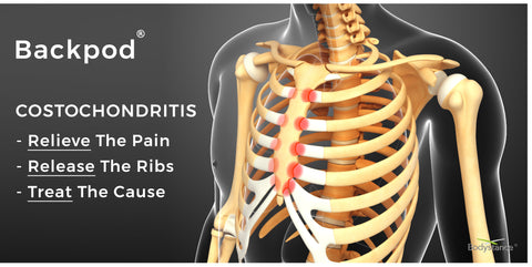 rib pain caused by costochondritis showing rib cage