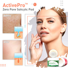Load image into Gallery viewer, ActivePro™ Zero Pore Salicylic Pad (55PCS)