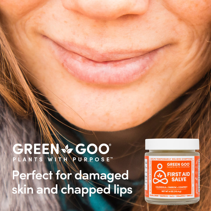 Perfect for damaged skin and chapped lips. First Aid Salve | Green Goo by Sierra Sage Herbs