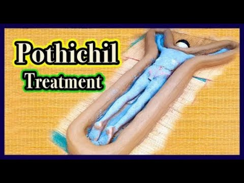 Pothichil Treatment Part 1 (Duration: 02:07:48)