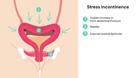 How does stress incontinence happen?