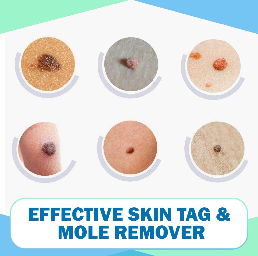WipeOff™Tags & Moles Remover