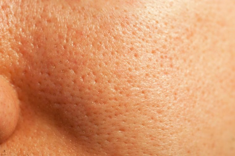 how to handle oily skin