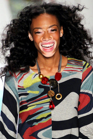 Winnie Harlow at New York Fashion Week 2015!