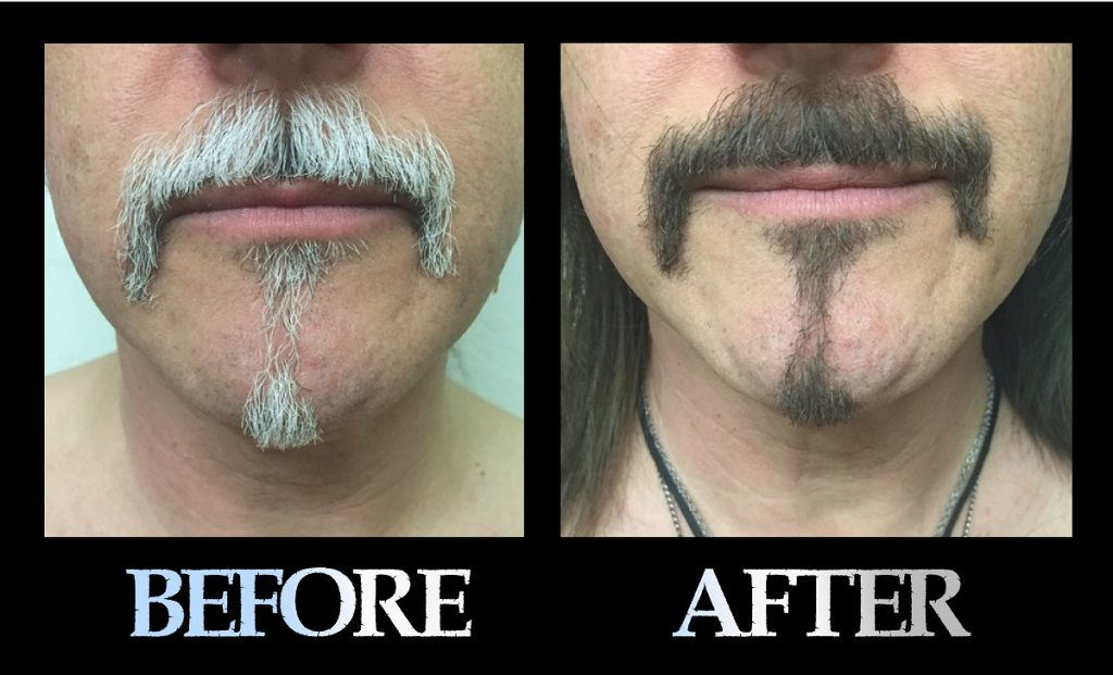 Blackbeard For Men before and after photo