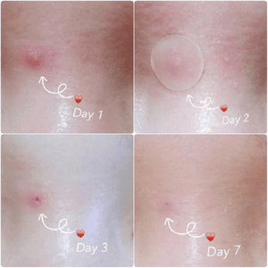 Skin Tag Remover Patch