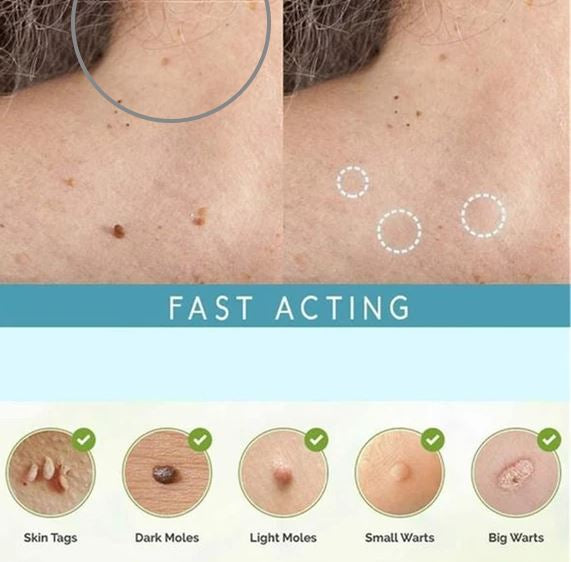 OFFImperfections™ Upgraded Skin Tag Removal