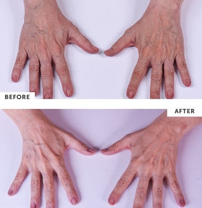 Silc Skin Hand Treatment