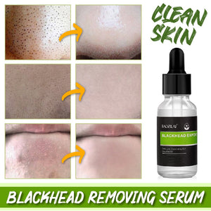 Blackhead Removing Serum