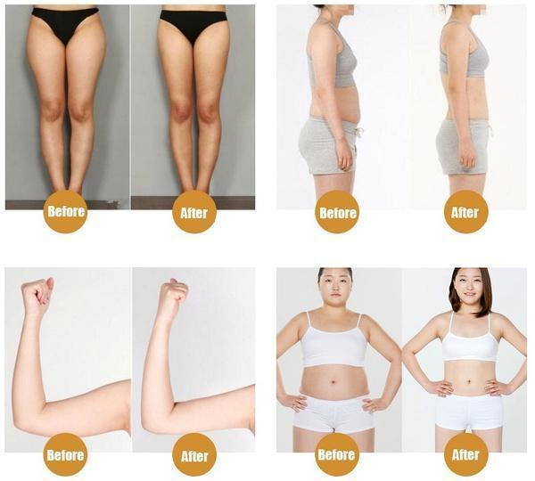 Magnetic High Penetration Herbal Slimming Patch