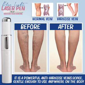 Blue Light Therapy Pen for Peripheral Venous Disorders