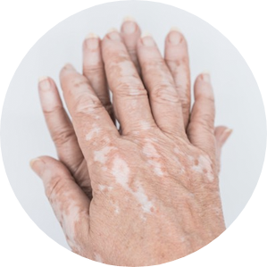 Alleviates Vitiligo symptoms
