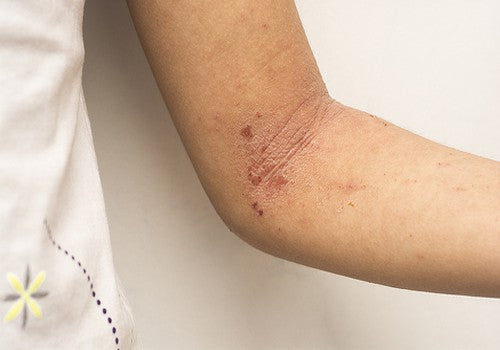 The 5 Do's And 5 Dont's of Eczema Care
