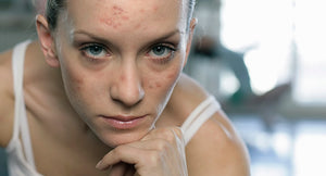 How CBD can effectively help acne