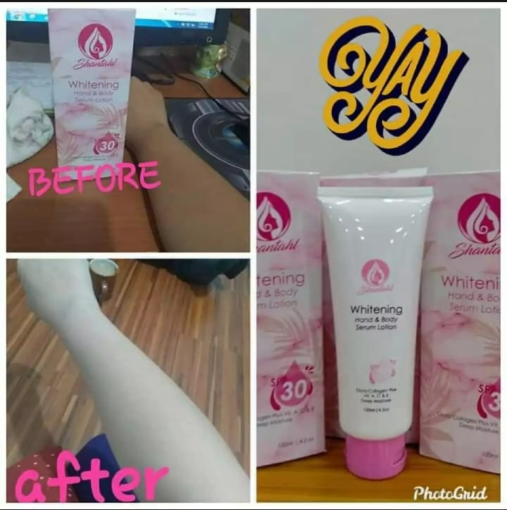 Shantahl Whitening Lotion