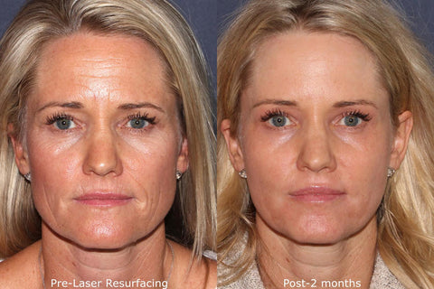 REALR Wrinkle reduction in boston