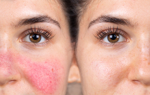Rosacea - How to treat it naturally and holistically