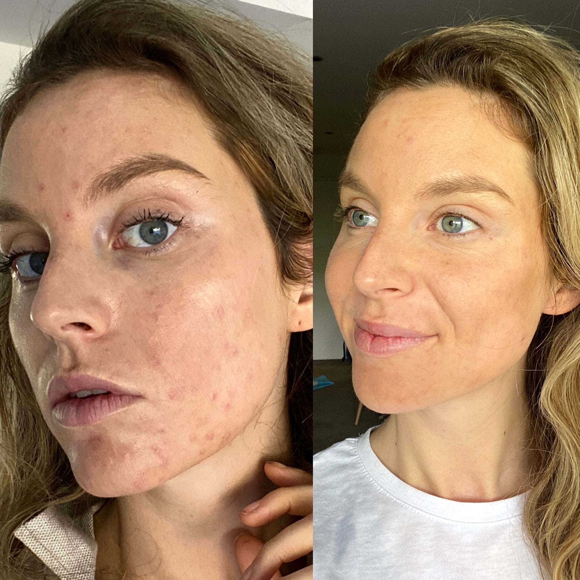 How I Healed My PCOS Acne Naturally